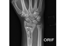 ORIF of the Forearm Fractures