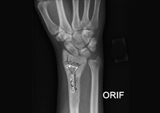 ORIF of the Humerus Fractures
